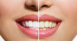 تغذیه و دندان هایی سفید- دستور العمل های تغذیه برای سفیدی دندان!!