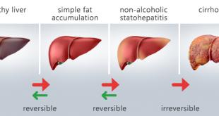 درمان کبد چرب گرید 3 - طبیعی ترین راه درمان کبد چرب با تغذیه سالم