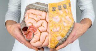 چاقی شکم - با توصیه های تغذیه شکم خود را تخت کنیم !