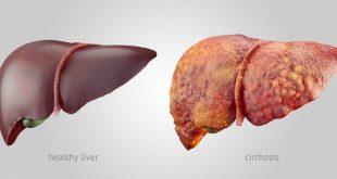 درمان طبیعی کبد چرب | راز داشتن کبد سالم و سیستم ایمنی قوی